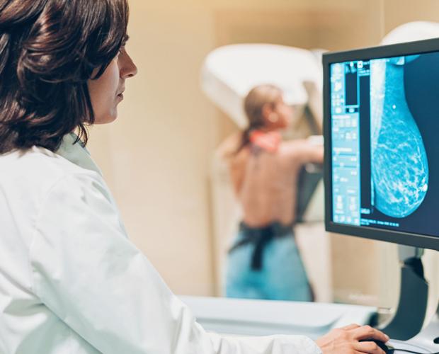 Agendamento de mamografia para funcionários da FUVS